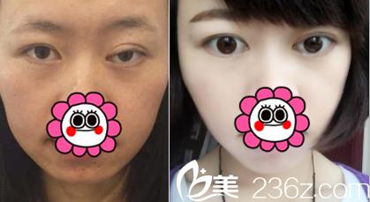 北京百达丽双眼皮修复案例