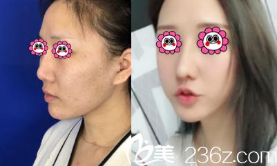 北京百达丽鼻修复案例