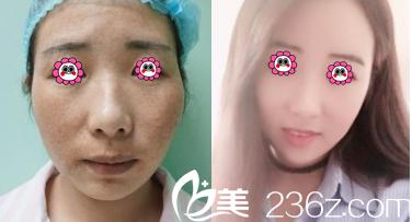 北京百达丽面部脂肪填充案例