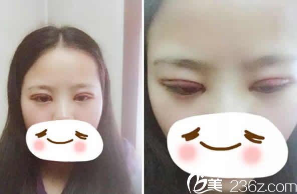 太原时光整形李晨霞医生给我做全切双眼皮加开眼角术后第3天照片