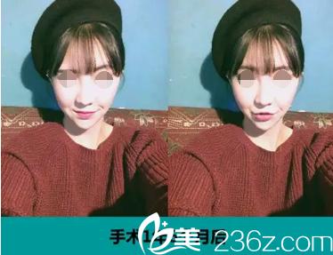 在韩国ID整形做无捆绑双鄂手术+vline手术+颧骨缩小手术后拥有瓜子脸