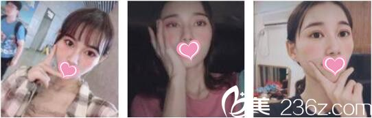 闺蜜说我在上海迪蔻找陶宏炜做的韩式双眼皮,术后效果自然银子没有白花