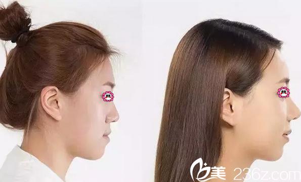 蓝绍梓天使之翼艺术鼻雕真人案例