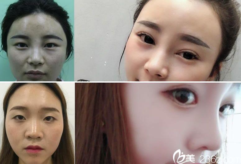 杭州冰美徐一波双眼皮和隆鼻案例