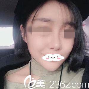 分享哈尔滨美联致美整形医院赵晓东院长给我做自体脂肪全脸填充一个月的过程以及效果