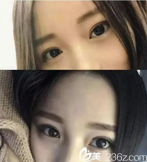 因长久使用双眼皮贴造成眼睑松弛 在宜昌前卫做了个双眼皮手术仅需15天就解决了