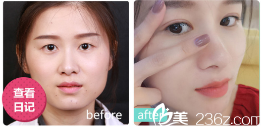 深圳美莱医院林登文做的双眼皮案例
