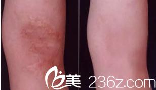 雅芳亚祛除烧伤疤痕案例