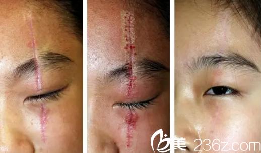 石家庄雅芳亚祛除刀疤案例