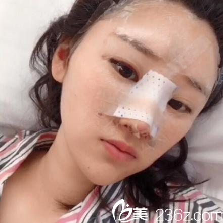 找亚洲鼻王曾高教授做过隆鼻手术第二天图片