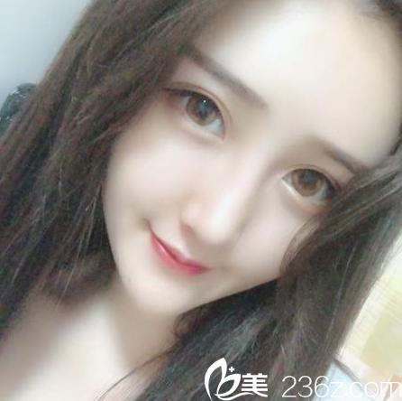 广州华美亚洲鼻王曾高医生做的隆鼻案例图片