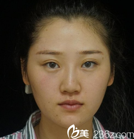 在广州华美做隆鼻手术前