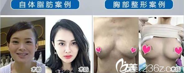 福州星龄黎护忠自体脂肪面部填充及隆胸案例