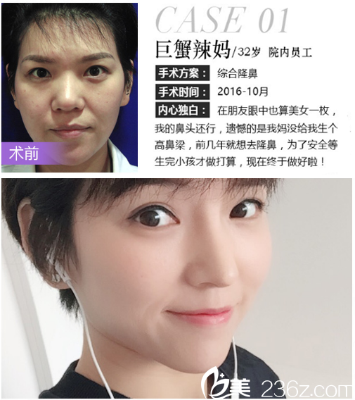 深圳米兰柏羽朱根武做的晶钻鼻综合隆鼻案例
