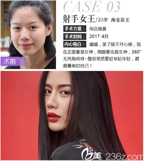 深圳米兰柏羽王志东做的鼻综合隆鼻案例