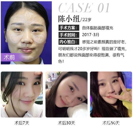 深圳米兰柏羽王志东做的自体脂肪面部填充案例