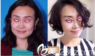 北京首玺丽格面部提升案例
