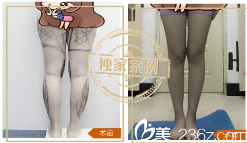 深圳米兰柏羽王志东做的大腿吸脂案例
