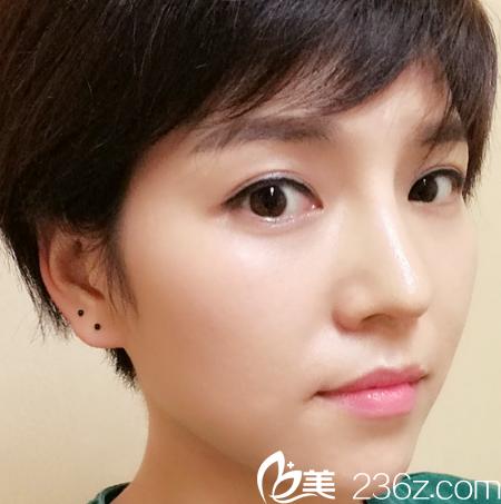 深圳隆鼻哪家好?看我找深圳米兰柏羽刘俊医生做的晶钻隆鼻案例就知道