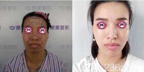 刘成胜面部脂肪填充案例