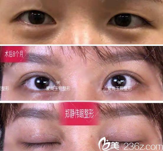 温州爱尚玉熙割双眼皮案例