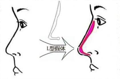 硅胶隆鼻副作用二:手术后存在假体不稳定