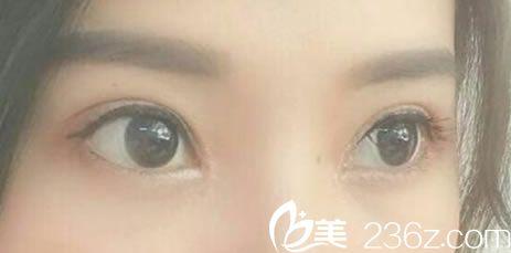 我就是典型的天生单眼皮,我找慈溪悦尔整形医院李继伟做双眼皮和开眼角啦!