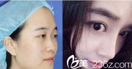 全肋骨隆鼻修复案例一