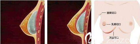 隆胸假体取出后护理事项: