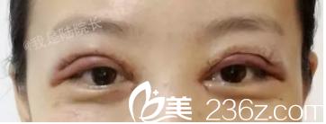 眼睛就像是被蜜蜂蛰了一样