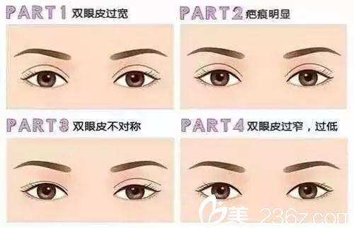 在哪些情况下需要做双眼皮修复手术