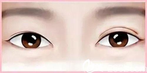 双眼皮修复手术较多能做几次
