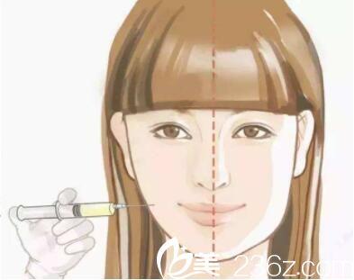 注射瘦脸针就要一直打吗