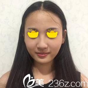 怀化华美医疗美容医院刘红梅术前照片1