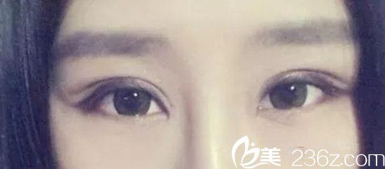 在南昌大学医疗美容门诊部做了6mm全切双眼皮,总共花了6000