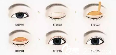 全切双眼皮过程示意图