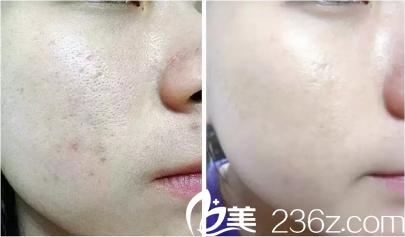 果酸换肤效果对比