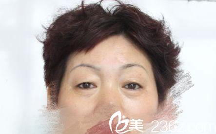 宁波米阳医疗美容门诊部史雪峰术前照片1