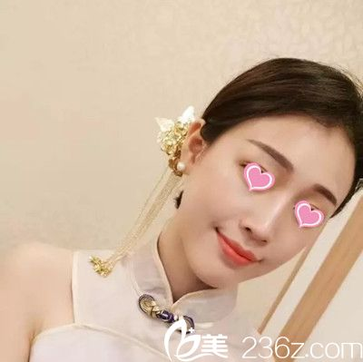 南昌大学医疗美容门诊部做隆鼻手术怎么样?提供一份廖洪跃隆鼻手术真人案例