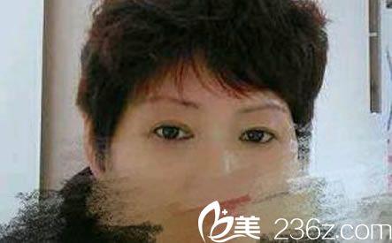 你们当地去除眼袋要多少钱,我在宁波米阳史雪峰这做外切去眼袋花3k贵不贵呀