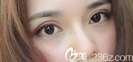 衢州梵星李威做眼睛和鼻子怎么样?这是我做全切双眼皮和鼻综合术后一个月效果图