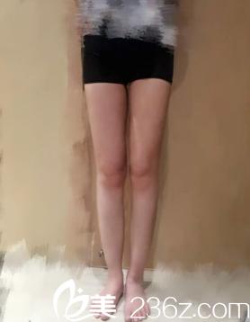 想要大象腿变筷子腿 只需找石家庄越然张鸿超做个大腿吸脂就能轻松拥有