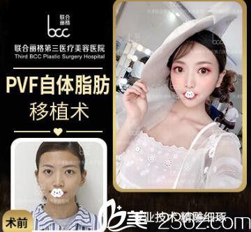 天津联合丽格王文凯自体脂肪面部填充案例