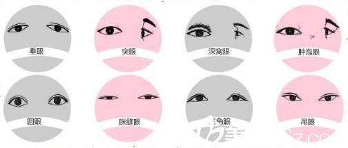 韩式无痕双眼皮的原理_韩式三点无痕双眼皮术