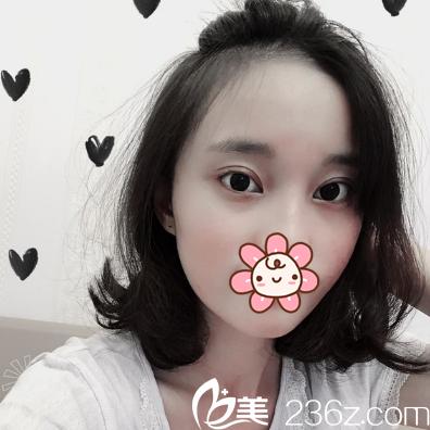 鼓起勇气,我找成都艾米丽刘叔阳做切开双眼皮进行美丽蜕变