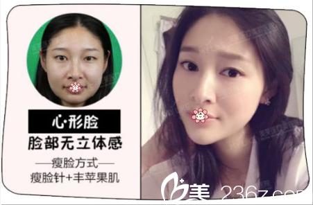 重庆美莱整形案例效果解释为什么你打完瘦脸针脸是僵的等等疑问!