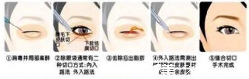 影响吸脂去眼袋价格的因素