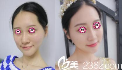 北京伊美康医疗美容医院自体脂肪面部填充案例