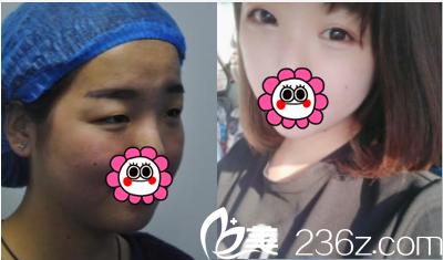 北京伊美康医疗美容双眼皮案例