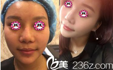 北京伊美康医疗美容医院激光祛斑案例